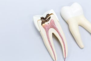 corrupted tooth model